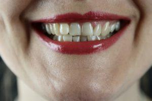 Hoe verzorg je ontstoken tandvlees?