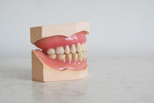 Angst voor de tandarts? Zo kom je ervan af